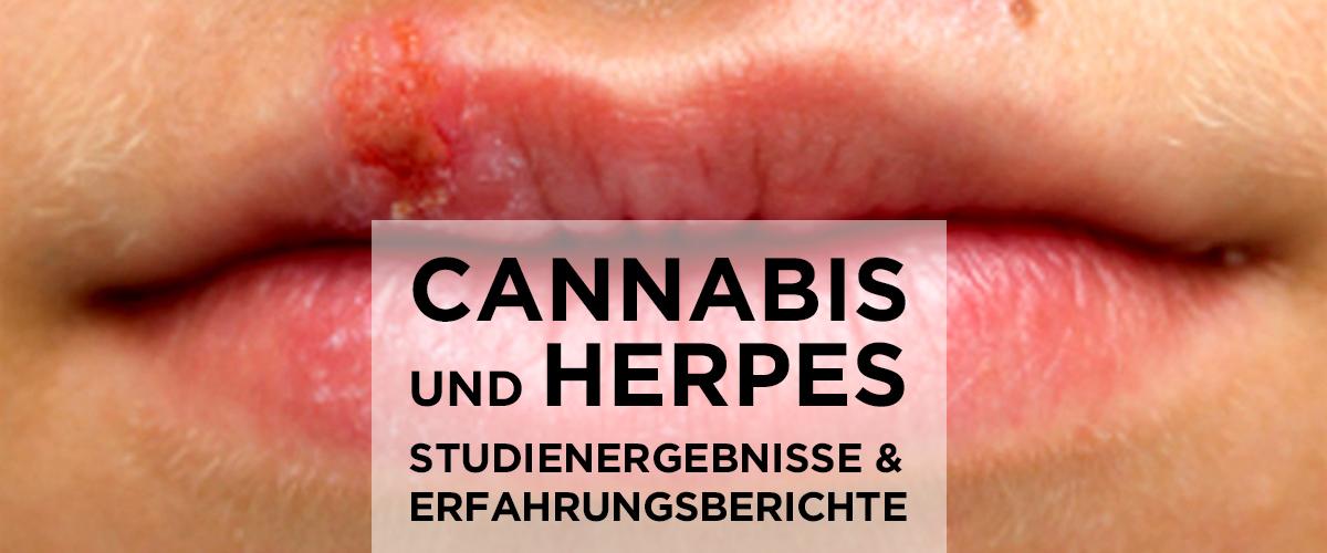 Herpes genitalis erfahrungen